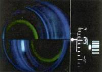 goldmann_tonometer
